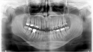 Ortopantomografia (opt)