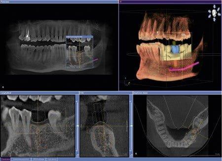 radiografia scan 3d