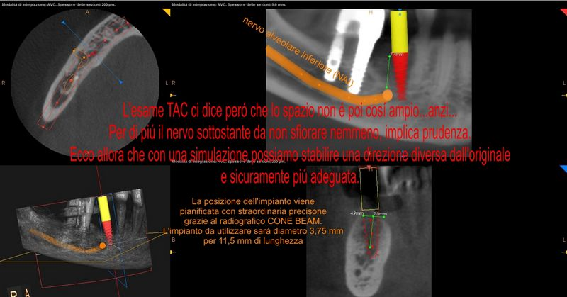 tac conebeam CBCT