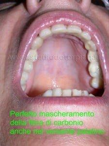 torontocarbonio1