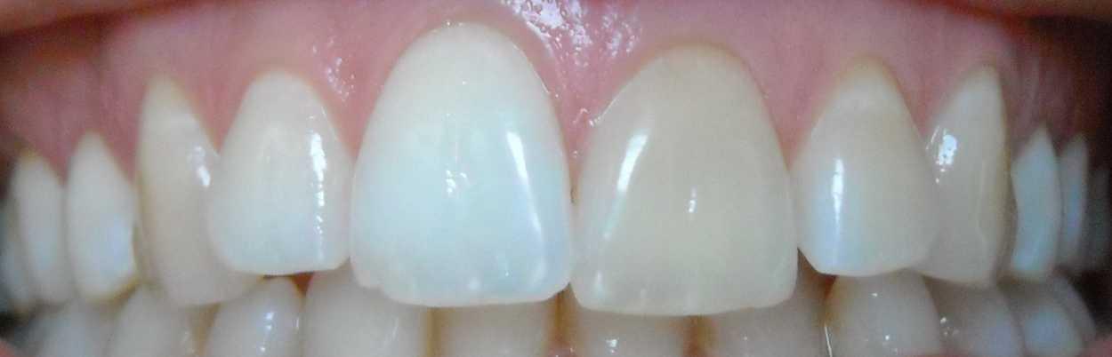 dente scuro senza motiv