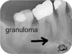 radiografia di dente in necrosi con granuloma