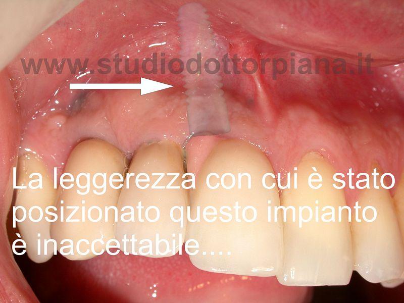 impianto dentale storto