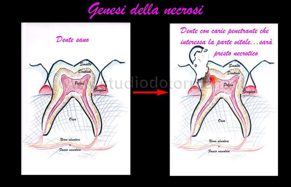 schema di come si arriva alla necrosi del dente