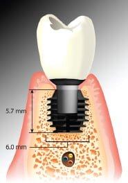 Short implant impianto corto