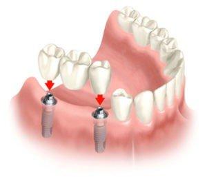 impianti-per-alcuni-denti