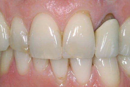 giunzione dente ceramica scoperta