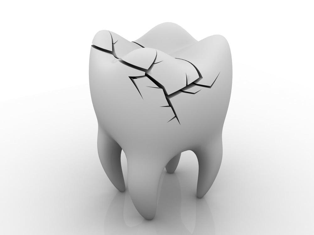Frattura del dente iniziale