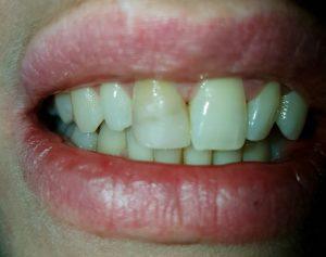 sbiancare dente devitalizzato prima