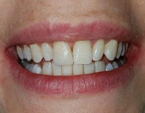 sbiancare dente devitalizzato dopo