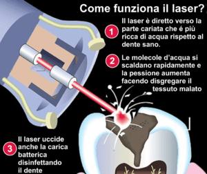 funzioni-laser-sulla-carie