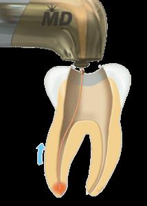 laser dentale ad uso endodontico