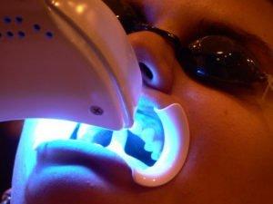 laser-sbiancare-denti-arcata