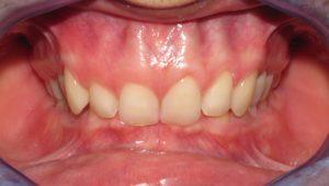 Ortodonzia per Morso coperto