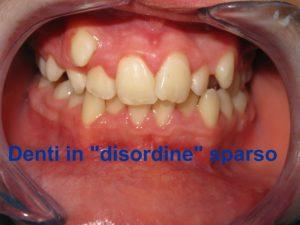 dentatura disallineata