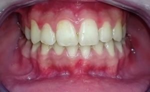 ortodonzia in disallineamento