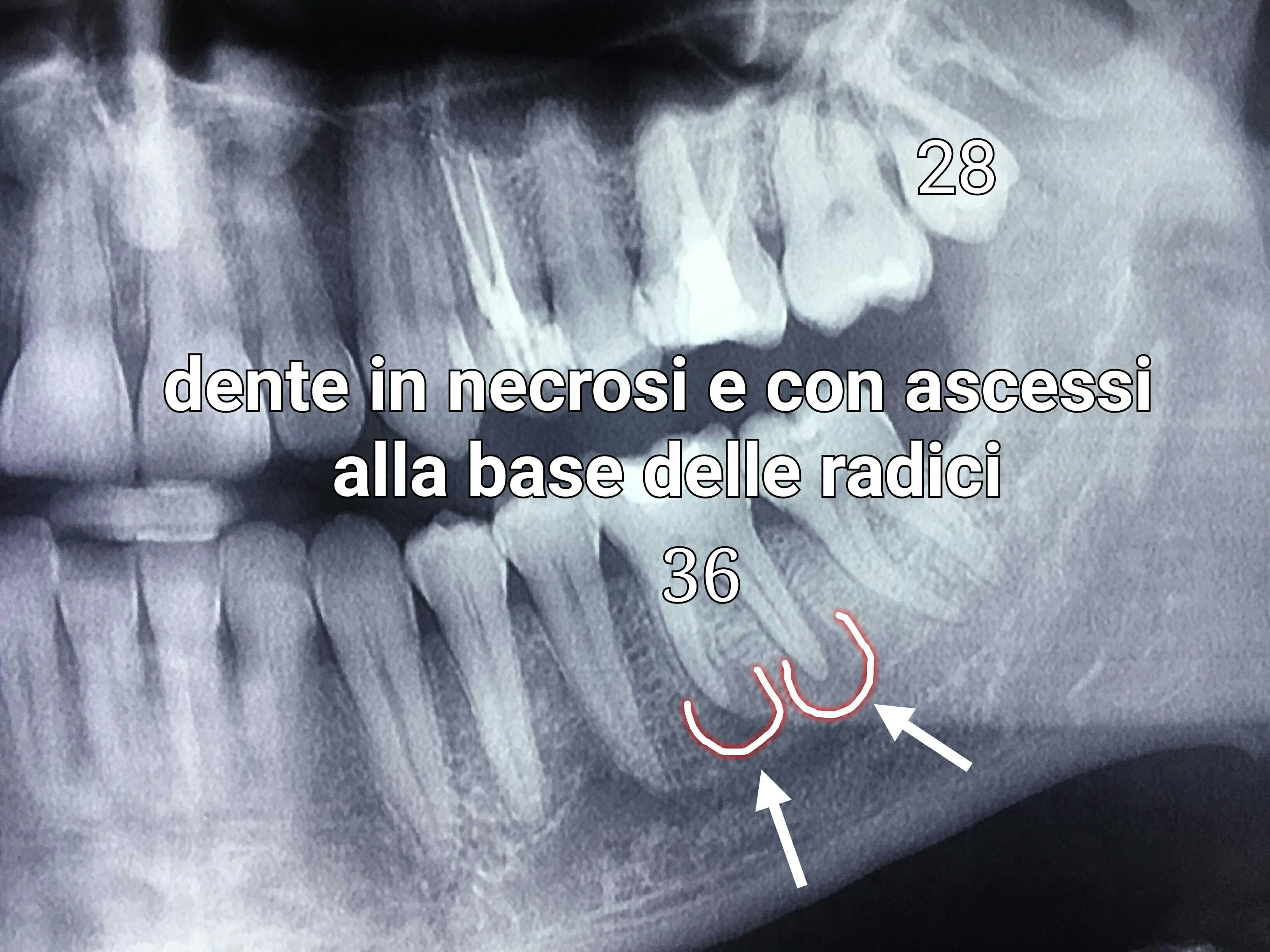 ascesso e necrosi dentale