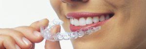 Ortodonzia con mascherine stile Invisalign