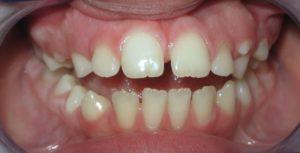 Ortodonzia per Morso aperto