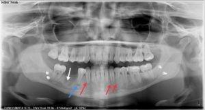 postumi intervento mandibola