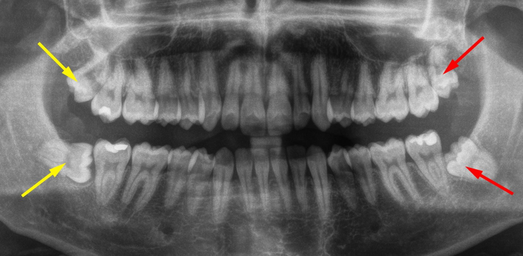 4 denti del giudizio da estrarre