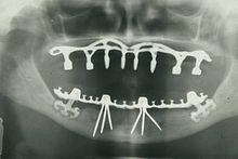 storia dell'implantologia