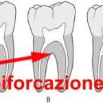 patologia della biforcazione radicolare