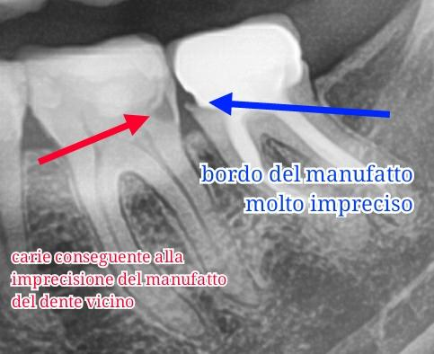 Dente impreciso