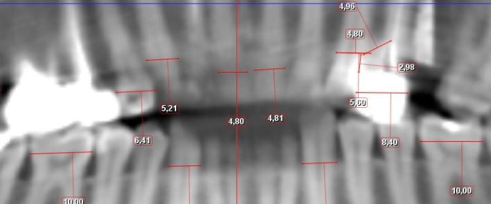 Capsula premolare 25% piu grande del dente naturale e conseguenze