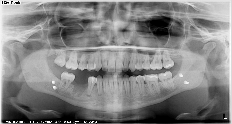Intervento mandibolare per scroscio postumi