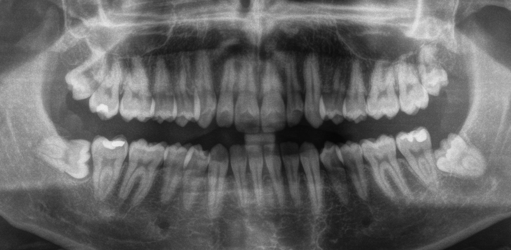 Denti del giudizio estrazione tutti insieme o uno per volta?